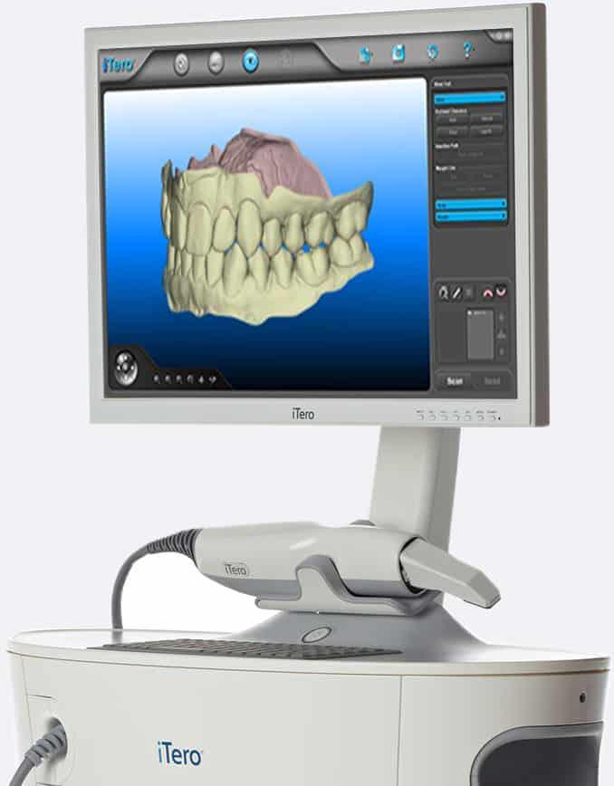 The Itero Digital Scanner Precision Orthodontic