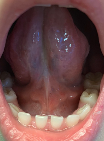 After Frenectomy6