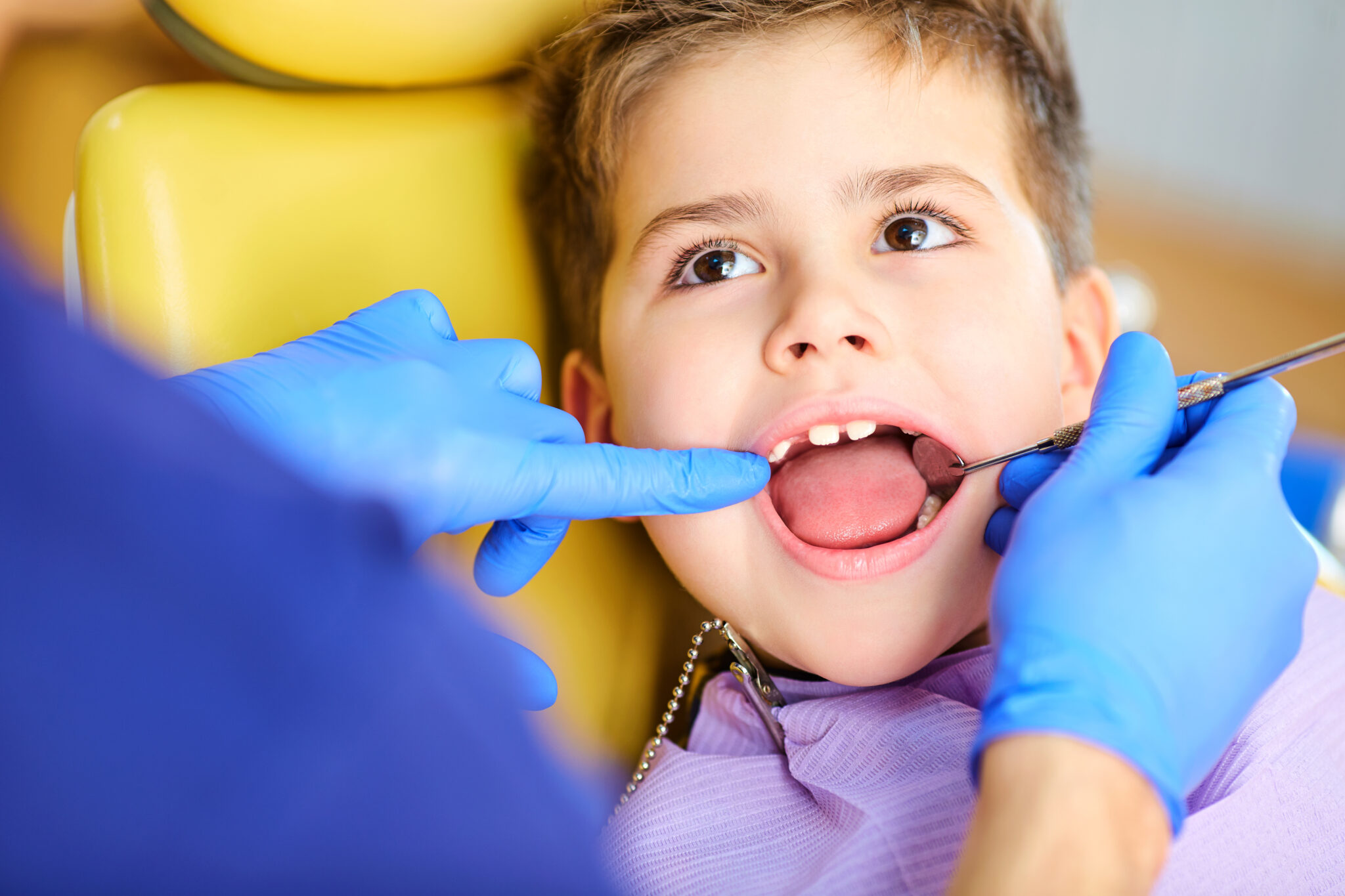 Early Childhood Dental Intervention